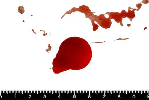 macchie di sangue